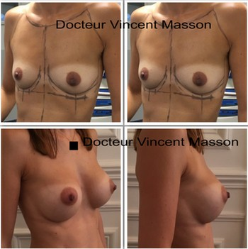 best plastic surgeon in paris france vincent masson