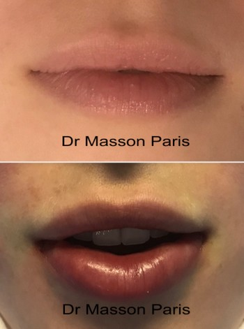 doctor vincent masson best plastic surgery paris france clinique blomet paris